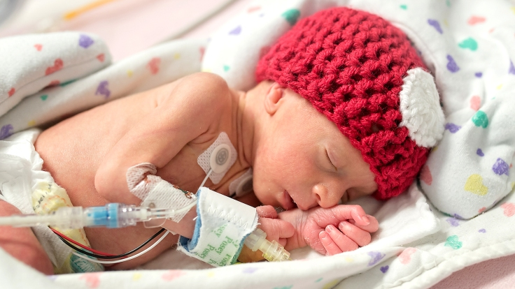 nicu-preemie-baby-today-170214-tease_ede9293b883fae271b9b4c81db774439